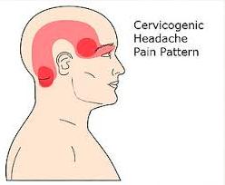 Headache originating in the neck.
