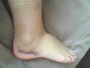 bruising ankle shepp physio