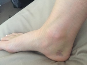 podiatry shepp ankle bruising