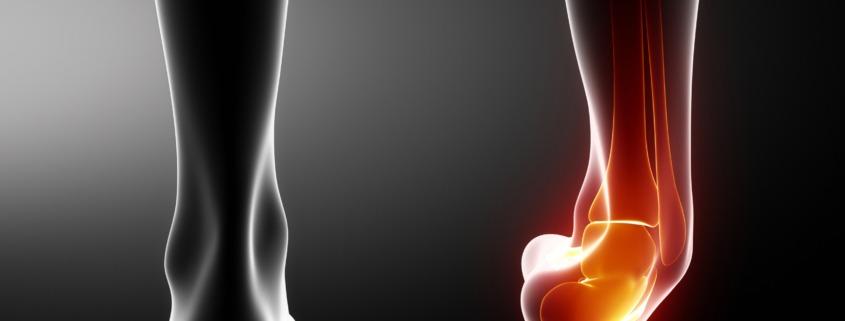 shepparton physio ankle sprain