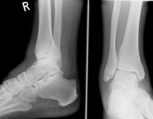 ankle sprain podiatry shepp