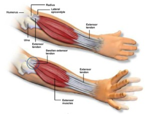 gv physio tennis elbow